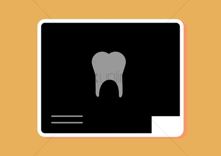 Xray : Tooth x ray