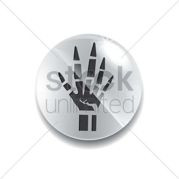 Free Xray Of Fractured Hand Vector Image 1605955 Stockunlimited Check out our xray hands selection for the very best in unique or custom, handmade pieces from our shops. stockunlimited