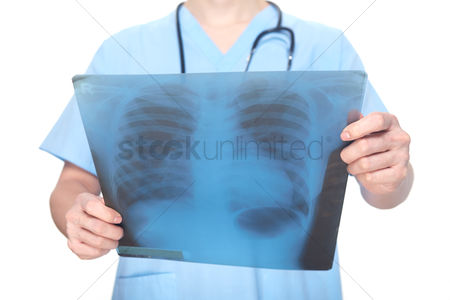 Medical personnel : Medical personnel showing an x-ray film
